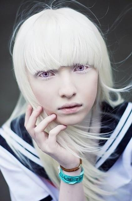 【アルビノ様】は純白で美しすぎるとメチャンコ話題に!