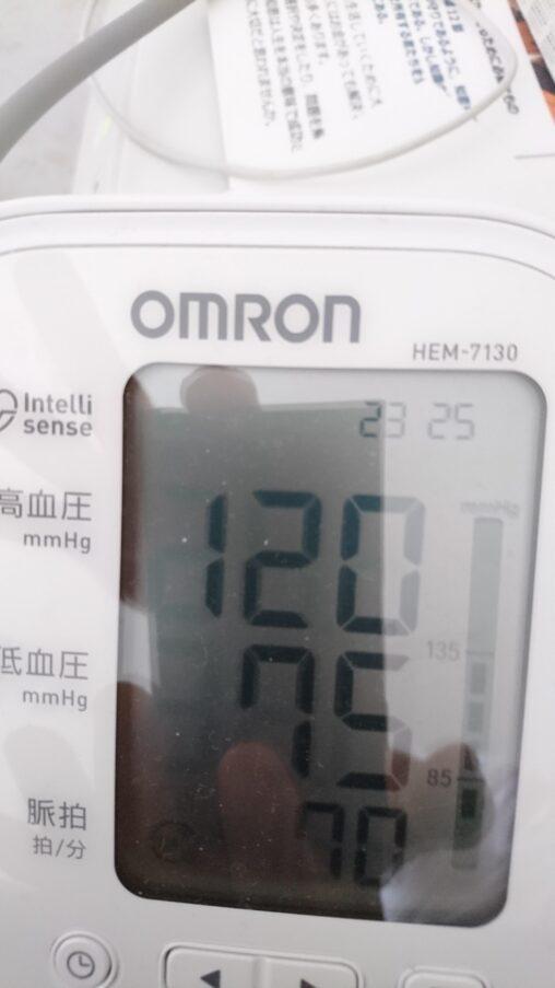 【緊急事態!助けて】血圧がやばくて何かの重大な病気かもしれない