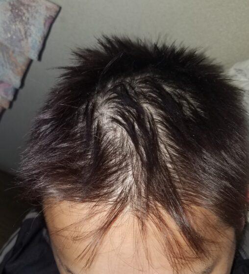 【毛短寿命!】俺の髪がギリギリのところでヤバいんだがどうすれば治る?