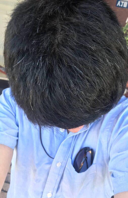 【実録!】大学でイジメにあったワイ、精神的ショックで頭が真っ白になる