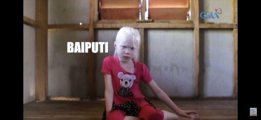 【確立高ッ!】フィリピン人がアルビノの子供を3人産んでるんだが