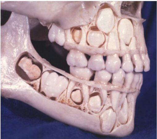 【背筋がゾワッ!】女子小学生の歯が生え変わる前の頭蓋骨