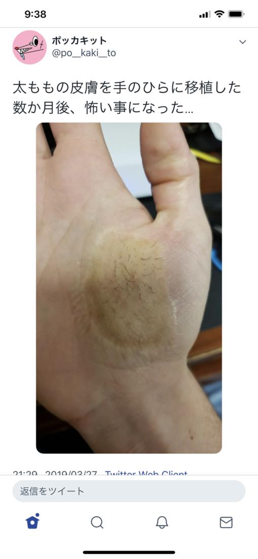 【毛障害!】女さんが太ももの皮膚を手の平に移植した結果がヤバイ