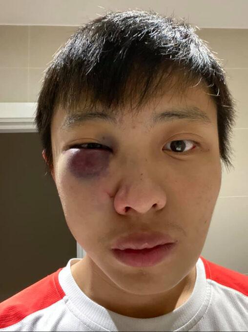 【シンガポール人?】イギリスのイケメン中国人、「コロナウイルス出ていけ」と顔の形が変わるまでブン殴られる