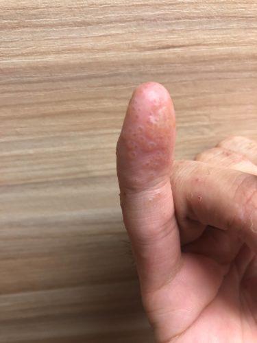 【痛痒い!潰す楽しみ】なあ小指にクソかゆい謎の水泡が大量に出現したんだが