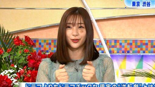 【茶色いシール!】足立梨花さん、顔面に謎のアザ?うんこ?を付けて何食わぬ顔でテレビ出演