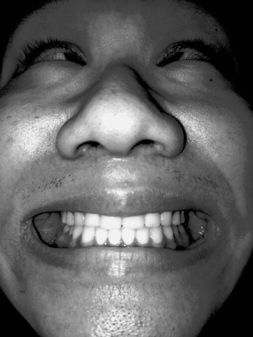 【理想の写真!】すまん、ワイより歯並び良いなんJ民おるか…?