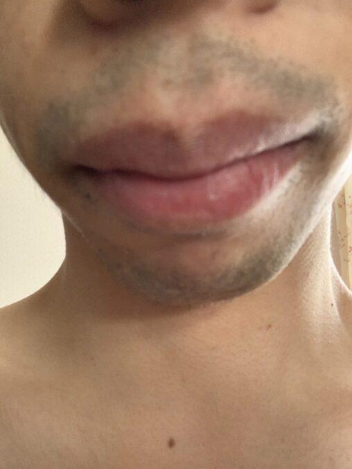 【口呼吸好きそう!】脱毛に60000万使ったワイの末路