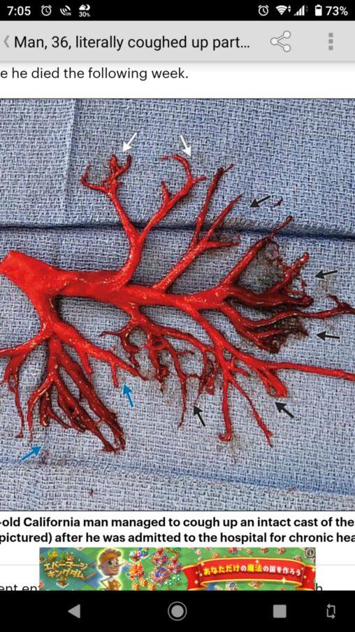 【吐く】アメリカ人、口から気管支樹の形をした血の塊が飛び出す