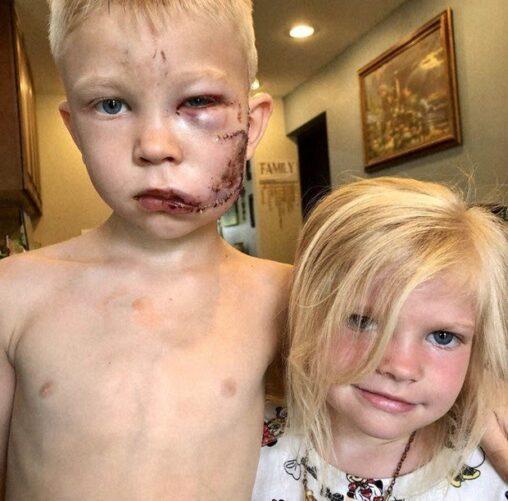 【ブリッジャー君!】犬に襲われた妹を死ぬ気で守った兄貴の顔
