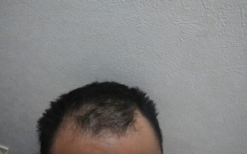 【強者の頭!】ハゲの俺がヘアワックス使ってみた結果