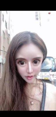 【小Z娜娜】13歳から100回の美容整形を受けたナナさん、顔面が崩壊寸前