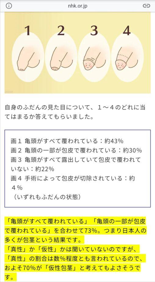【剥け!】日本人男性の70%、仮性包茎だった