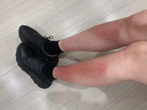 【注意喚起】モデル女性が飲食店で火傷、店がコロナ対策で来店客に滅菌用の紫外線を照射