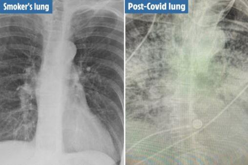 コロナ感染者の肺のレントゲン画像、喫煙者よりもヤバイと話題に