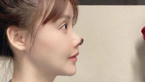 【海外】中国の女優、美容整形の失敗をSNSで公表、鼻先が壊死