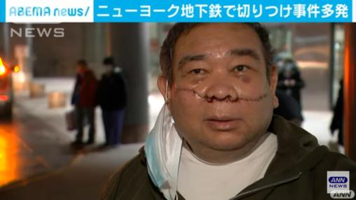【ニューヨーク】黒人さん、アジア人を地下鉄で切りつけけてしまう