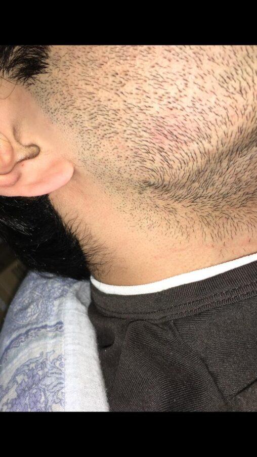 【爆弾低気圧男!】2日ヒゲ剃らないだけでこうなる