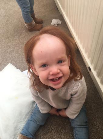 【画像】脱毛クリームを頭に塗った1歳児、ハゲる