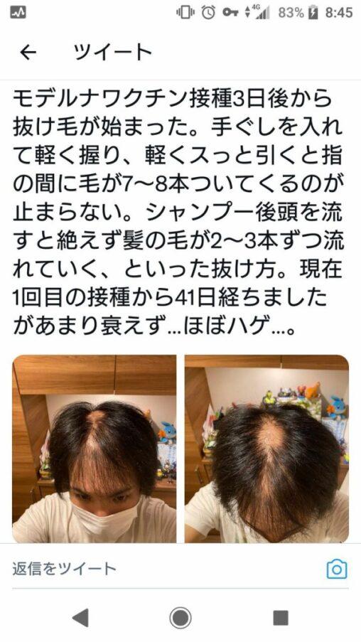 【抜け毛】モデルナワクチンを接種したイケメン、ハゲ散らかしてしまう